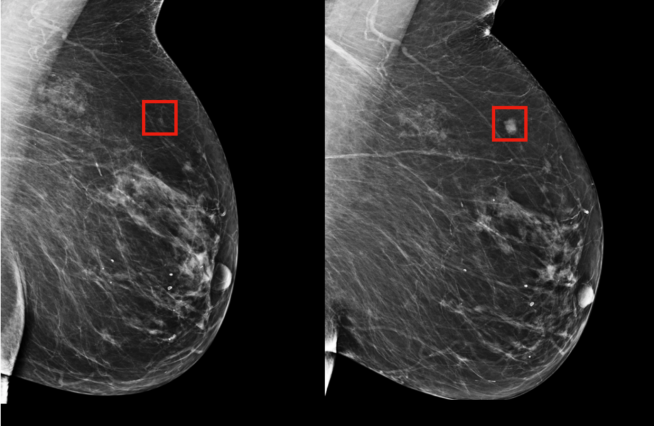 Two breast mammograms with early and later stage cancer shown
