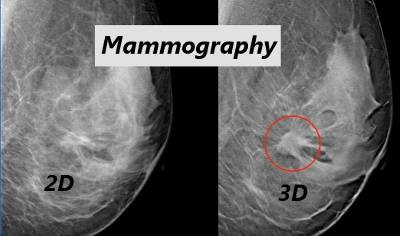 2D and 3D views of a mammograph